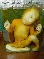 Preserved Human Foetus